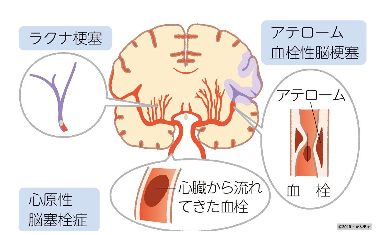 原 脳 塞栓 症 心 性