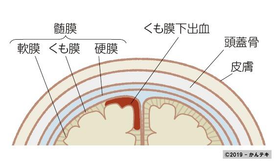 くも膜 下 出血 原因