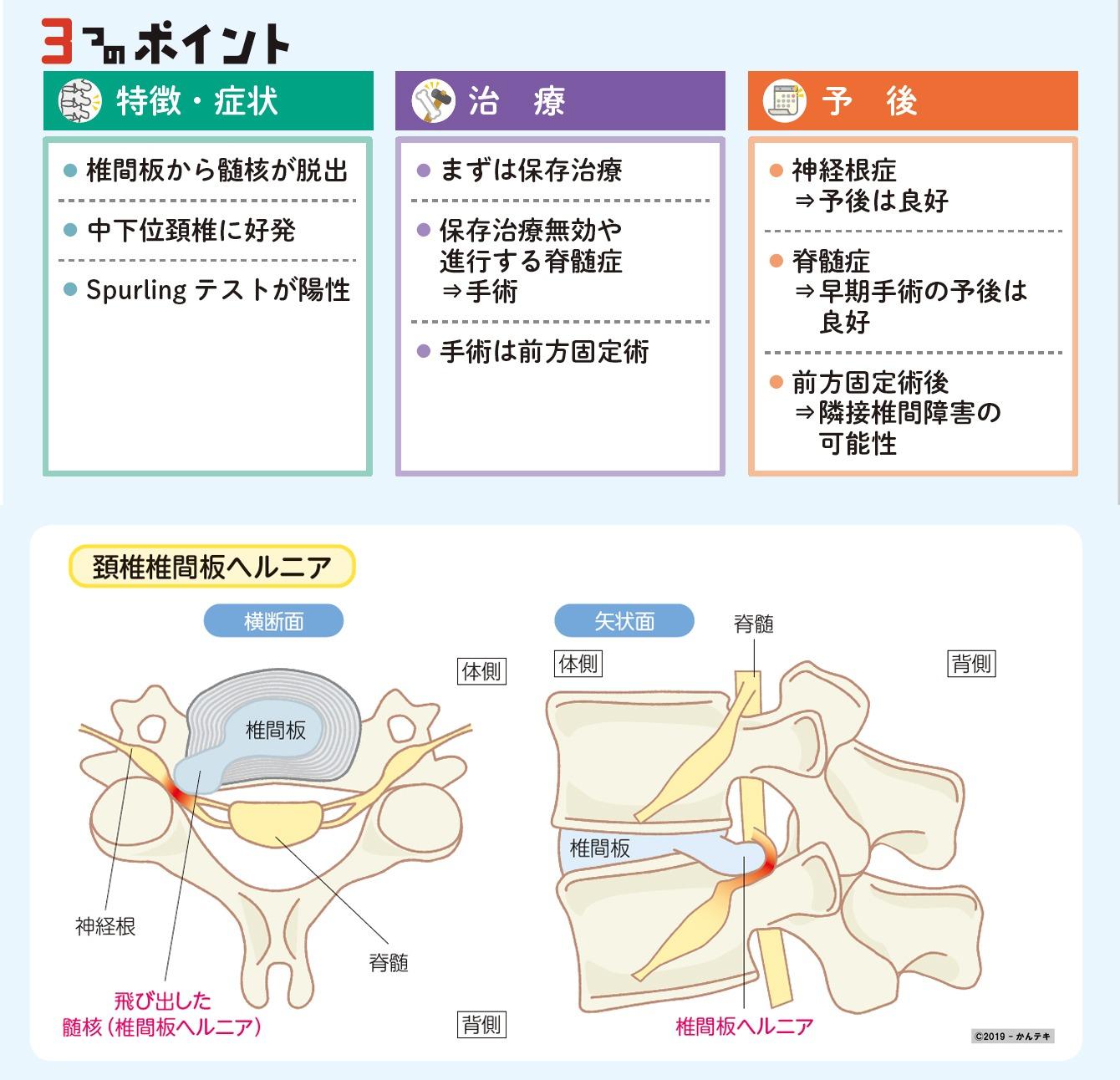椎間板 ヘルニア 頚椎